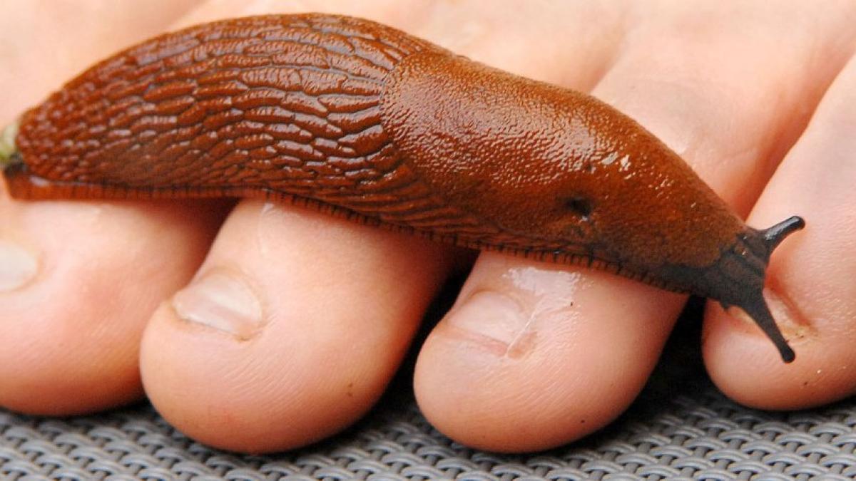 pattanásférgek kezelése a papillomavírus teherbe esik