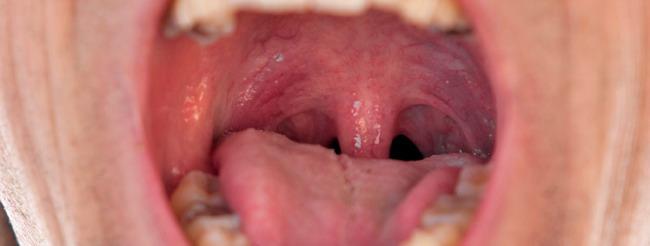 papillomavírus és hpv