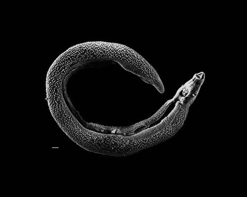 jemen schistosomiasis a gyereknek férge van a firka