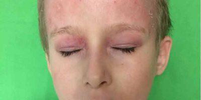 paraziták kezelése az arcon