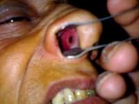 hogyan gyűjtsük össze az ürüléket az enterobiosis számára