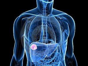 a nyaki rák gyógyul