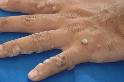 szemölcsök a kéz vírus