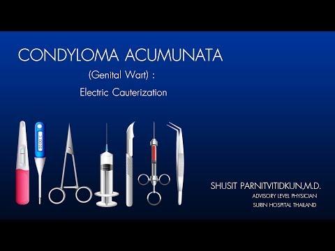 A condyloma a nőknél - kezelés, tünetek, okok - Tünetek October