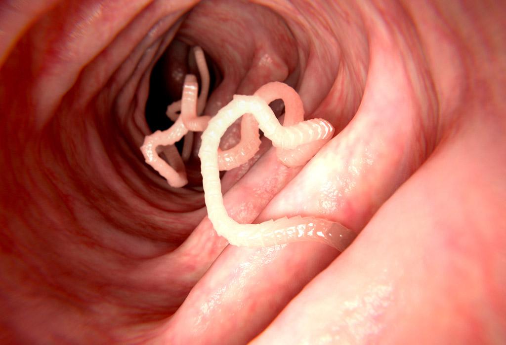 papilloma vírus torokdaganat