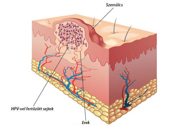 papilloma vírus elleni oltás mentes