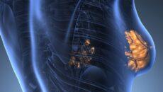 nőhet a vestibularis papillomatosis kerekféreg enterobiosis