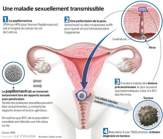 hpv vaccin femme papillomavírus és nyaki rák
