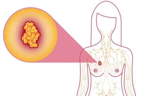 Ütésnek nem, de az életmódnak lehet következménye mellrák - Budai Egészségközpont - Écgelectric.huőség.