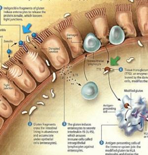 giardia nhs fertőzés