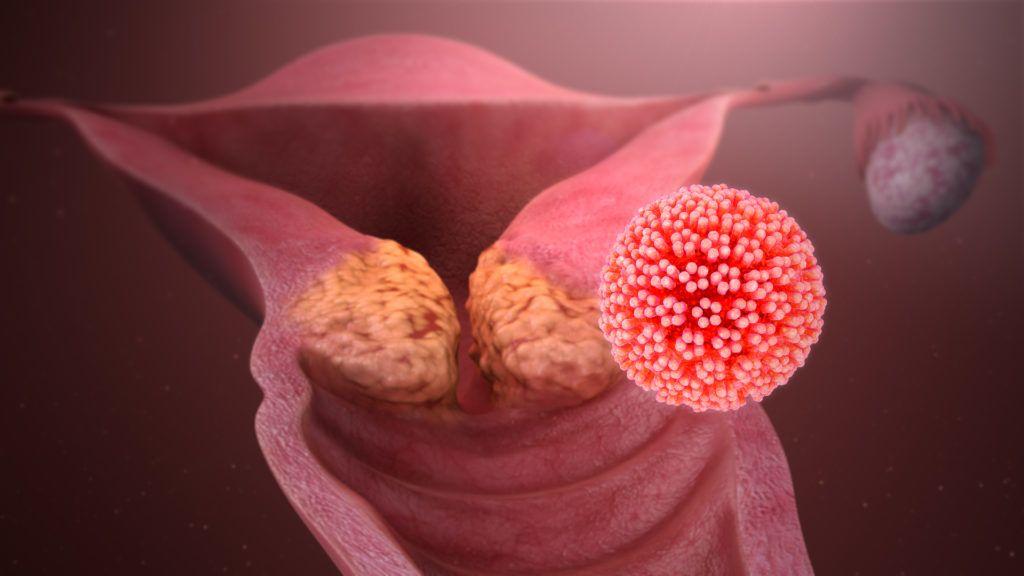 a papillomavírus magától gyógyítja meg magát