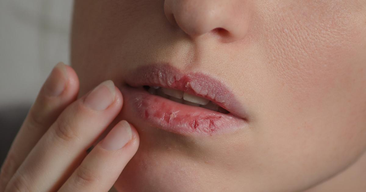 a papilláris ajkak eltávolítása