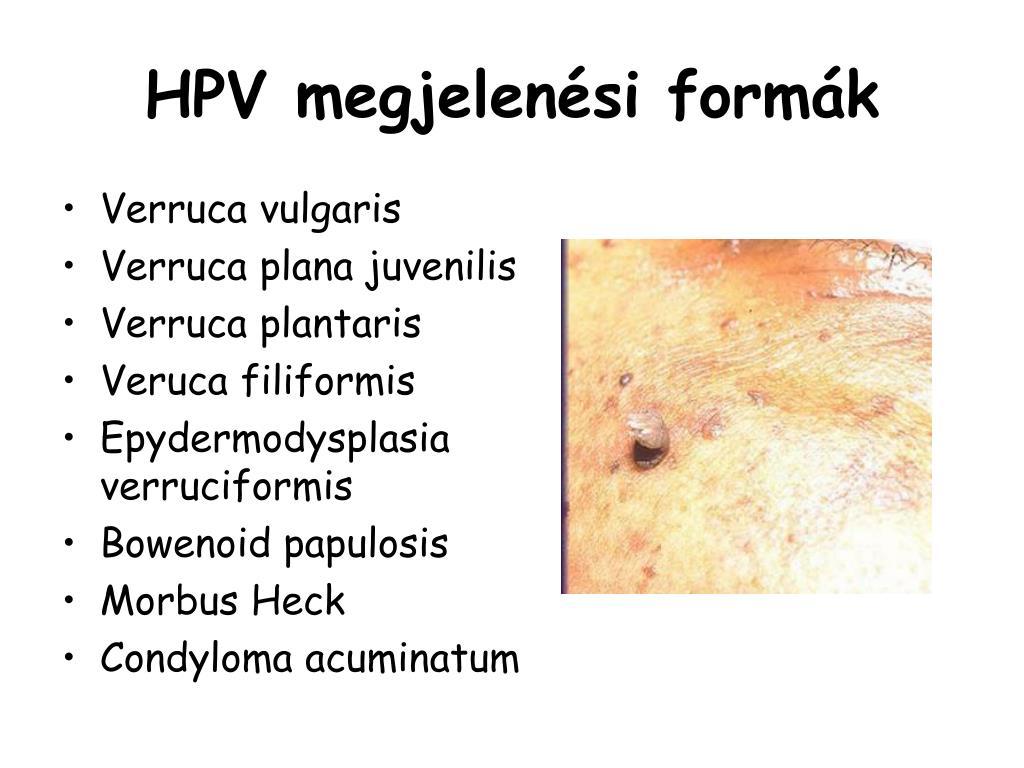 condyloma acuminatum gyermek