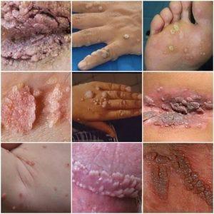 mi a condyloma a keresztirányban az emberi papillomavírus patogenezise