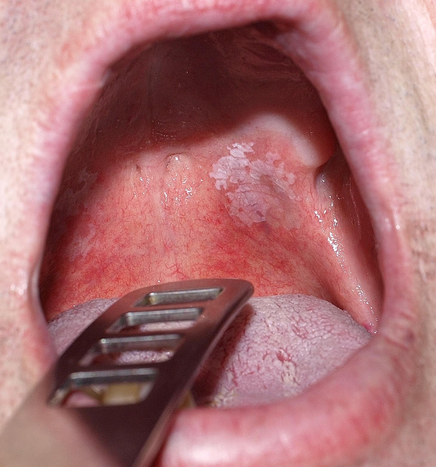 papillomavírus szájkép